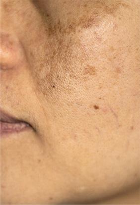 isispharma skóra 1