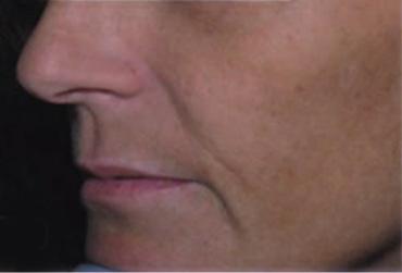 neoretin skóra 1