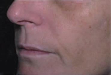neoretin skóra 2